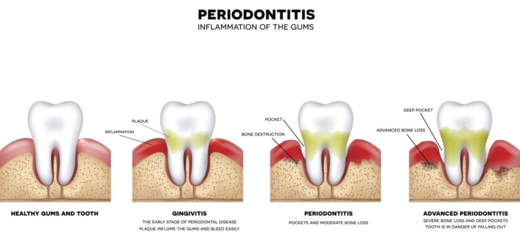 signs of gum disease and treatment in Skokie, Illinois