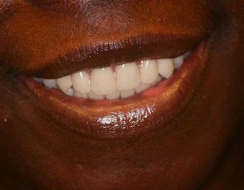 After cosmetic dentistry at The Stein Center for Advanced Dentistry