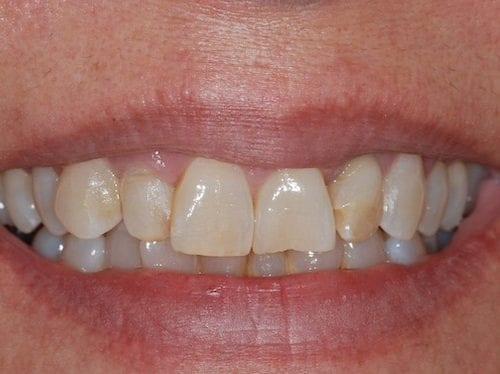 Before cosmetic dentistry at The Stein Center for Advanced Dentistry