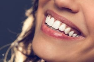 cosmetic dentistry available in Skokie Illinois